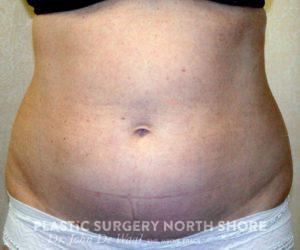 abdomin before liposuction
