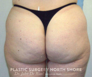 buttocks after liposuction