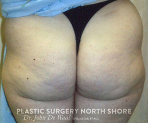 buttocks before liposuction